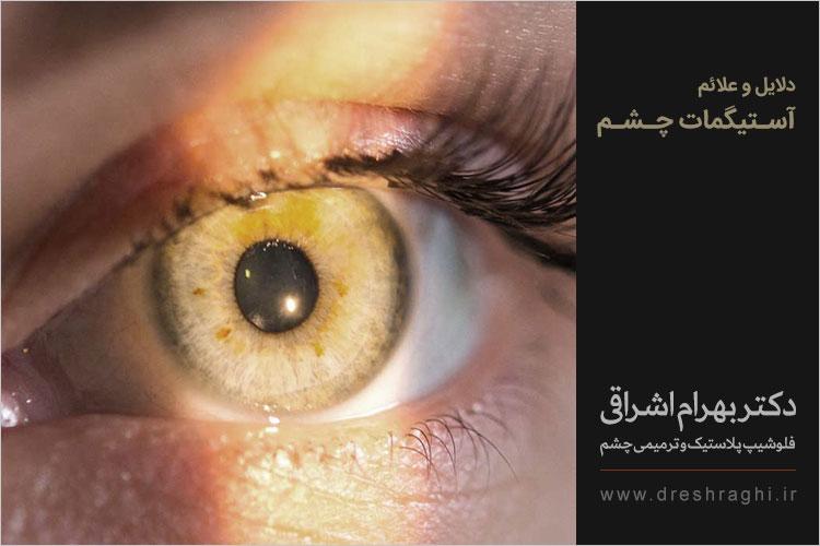 علائم آستیگمات چشم