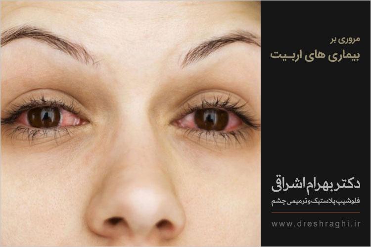 بیماری های اربیت یا حدقه چشم