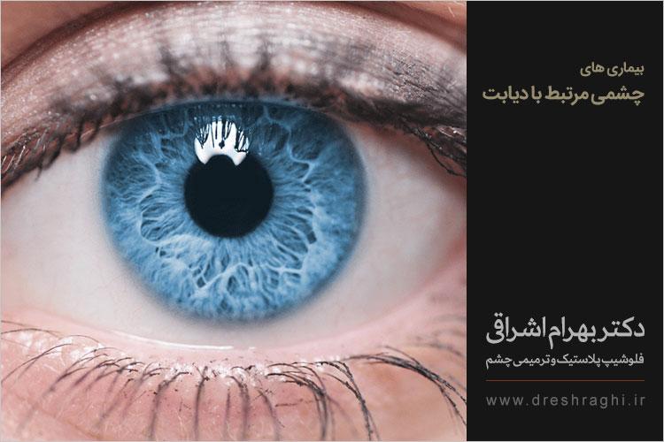 دیابت و چشم ها
