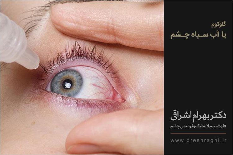 آب سیاه چشم