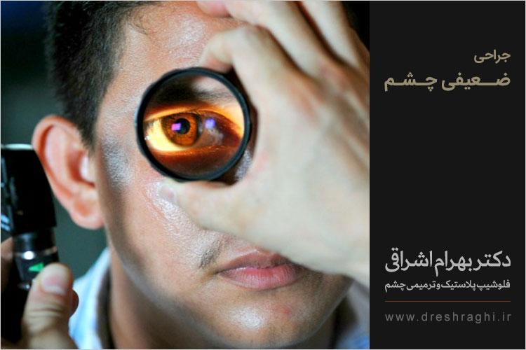 جراحی ضعیفی چشم