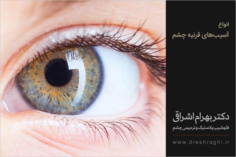 آسیب های قرنیه چشم