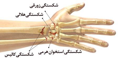 نتیجه تصویری برای شکستگی استخوان مچ دست