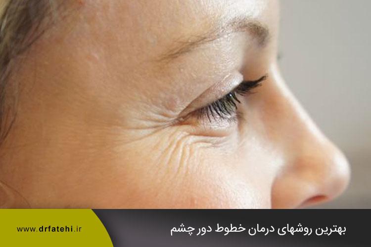 درمان خطوط دور چشم