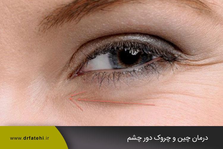 جوانسازی دور چشم
