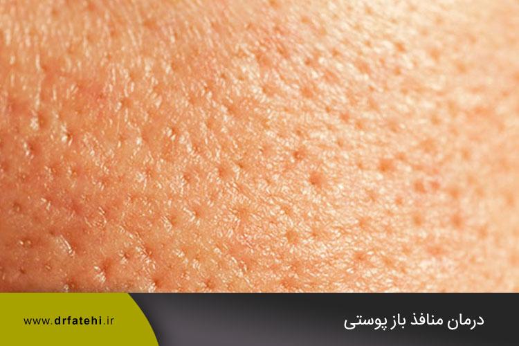 منافذ باز پوستی
