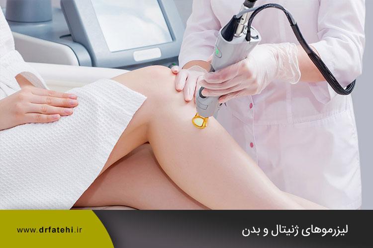 لیزرموهای ژنیتال و بدن