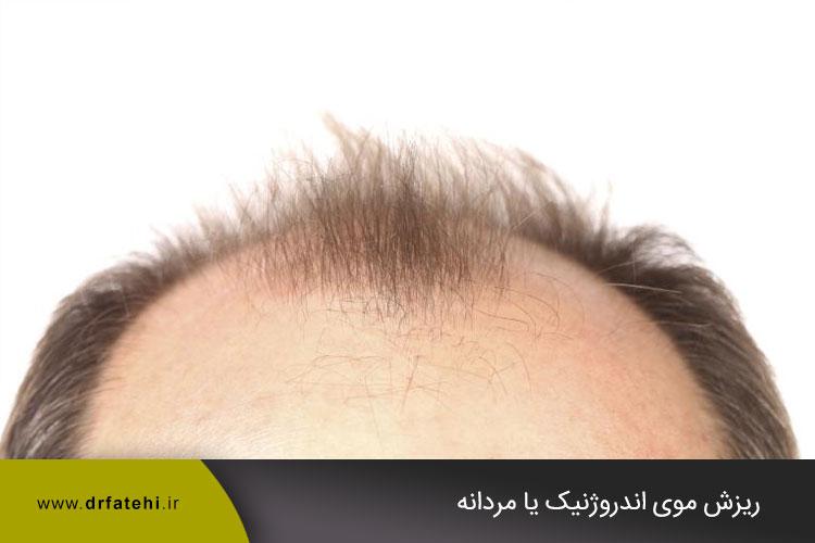 ریزش موی اندروژنیک