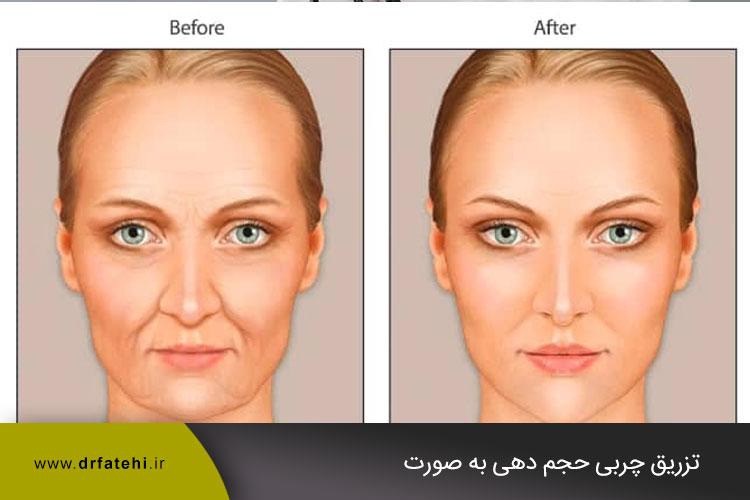تزریق چربی و حجم صورت