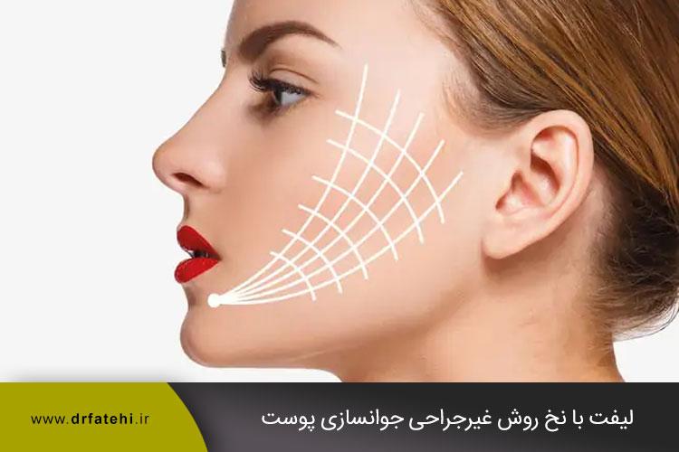 لیفت با نخ روش غیرجراحی جوانسازی پوست