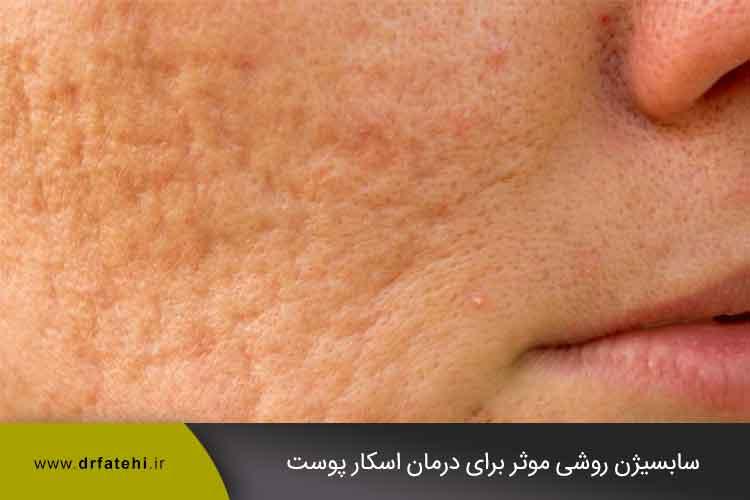 سابسیژن روشی موثر برای درمان اسکار پوست