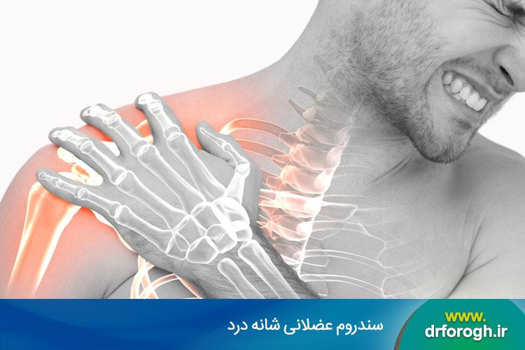 سندروم شانه درد
