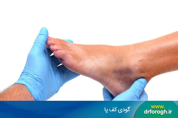 علل گودی کف پا