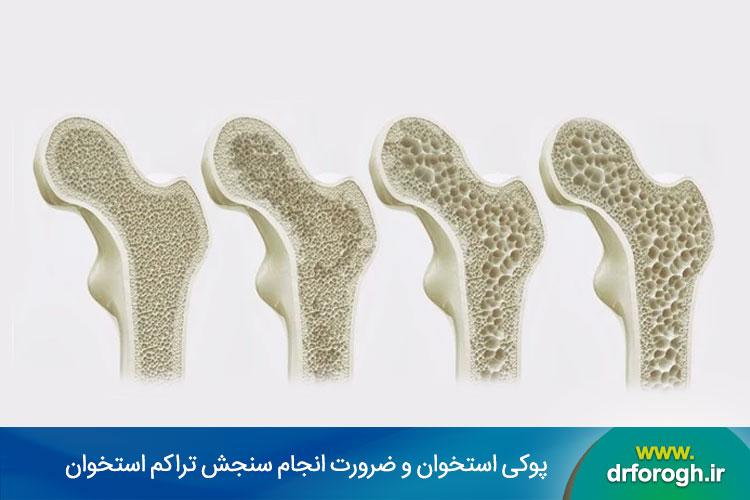 سنجش تراکم استخوان