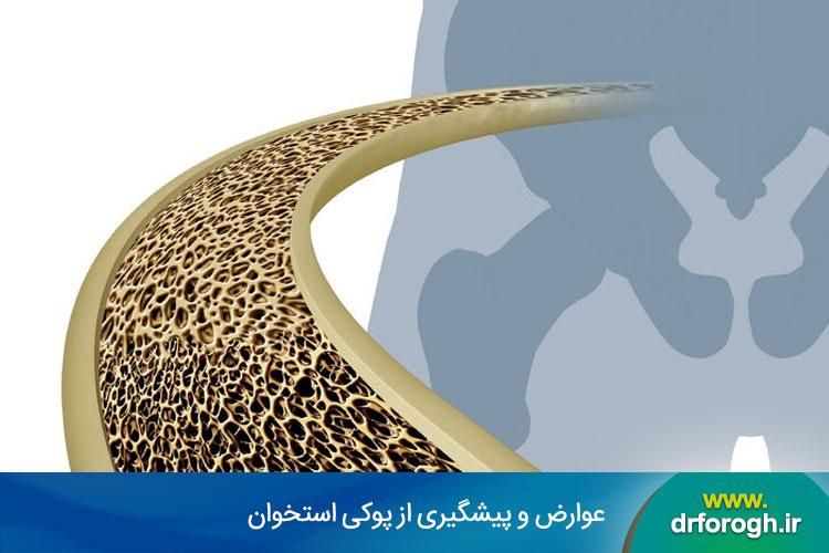 پیشگیری از پوکی استخوان