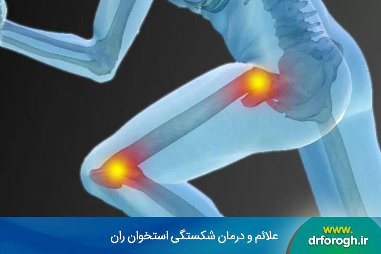 شکستگی استخوان ران