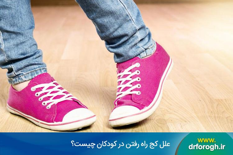 علل کج راه رفتن در کودکان