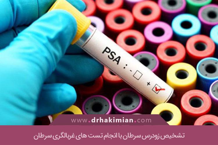 آزمون های غربالگری سرطان