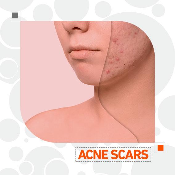 درمان ترکیبی اسکار آکنه دکتر جمال حسن زاده بهترین متخصص پوست و مو سنندج پیلینگ شیمیایی، سابسیژن و میکرونیدلینگ