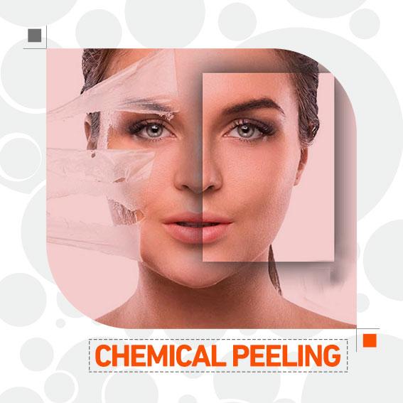 پیلینگ شیمیایی دکتر حسن زاده بهترین متخصص پوست و موی سنندج