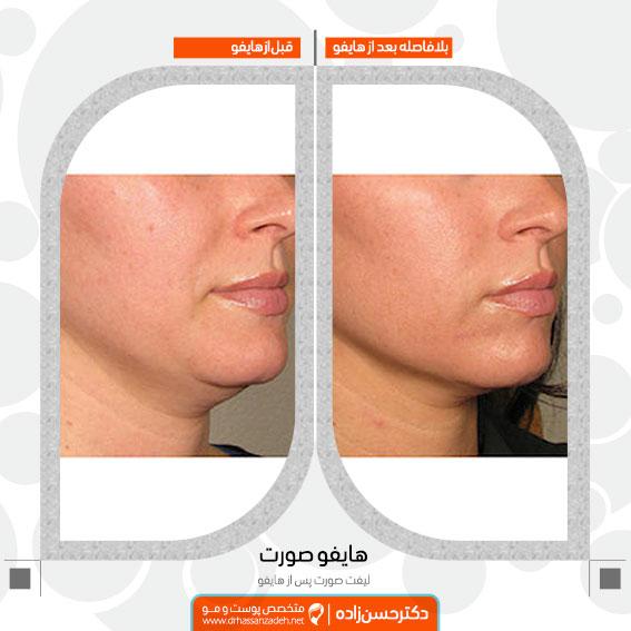 نمونه لیفت صورت با هایفوتراپی دکتر جمال حسن زاده بهترین متخصص پوست، مو و زیبایی سنندج