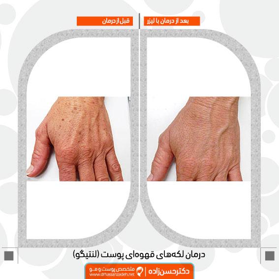 لنتیگو دست لکه های قهوه ای دست درمان با لیزر دکتر جمال الدین حسن زاده بهترین متخصص پوست، مو و زیبایی سنندج، کردستان و ایران