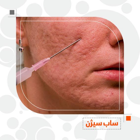 سابسیژن درمان جوشگاه درمان اسکار دکتر جمال الدین حسن زاده بهترین متخصص پوست، مو و زیبایی سنندج، کردستان و ایران