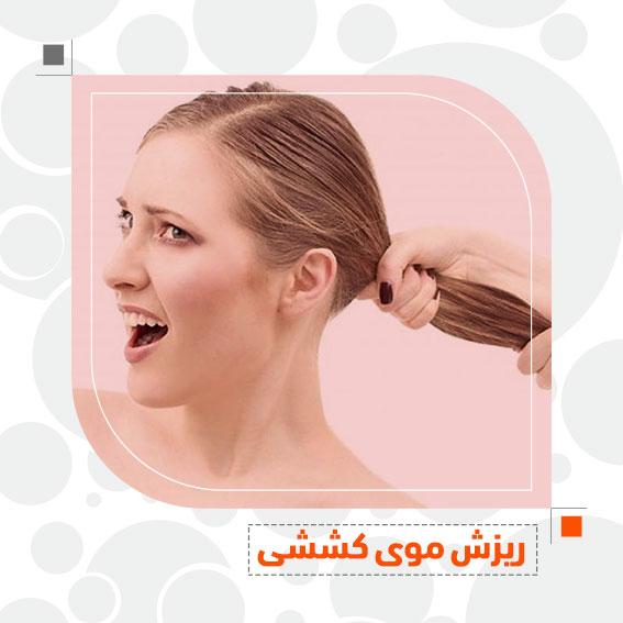 ریزش موی کششی ریزش مو کشیدن مو سشوار کشیدن بستن مو دکترجمال الدین حسن زاده بهترین متخصص پوست، مو و زیبایی سنندج، کردستان ایران تهران