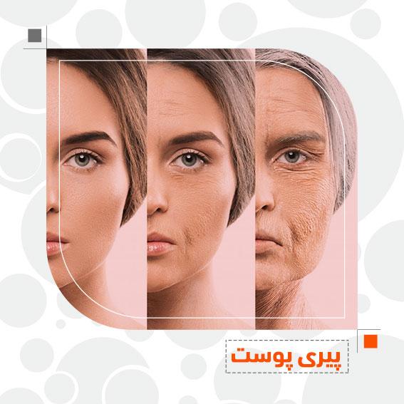 پیری پوست پیری طبیعی دکتر جمال الدین حسن زاده بهترین متخصص پوست، مو و زیبایی سنندج، کردستان ایران