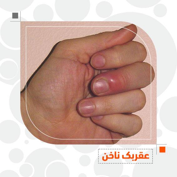 عقربک ناخن بیماری های ناخن مراقبت از ناخن دکتر جمال الدین حسن زاده بهترین متخصص پوست، مو و زیبایی سنندج، کردستان ایران