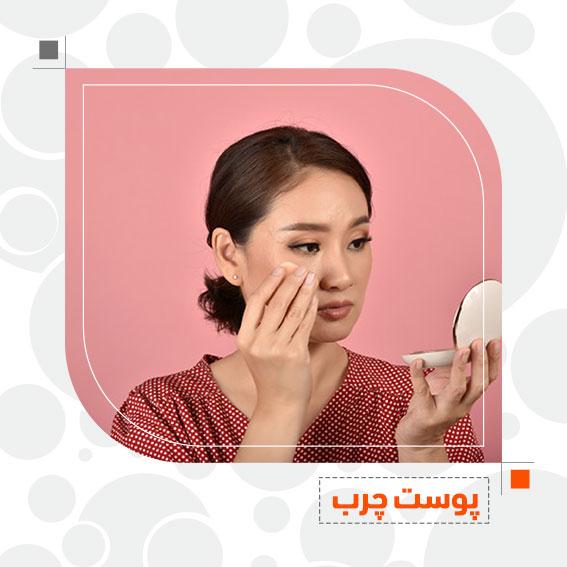پوست چرب مراقبت از پوست دکتر جمال الدین حسن زاده بهترین متخصص پوست، مو و زیبایی سنندج، کردستان ایران