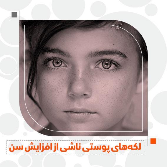 لکه های پوستی ناشی از افزایش سن جوانسازی پوست دکتر جمال الدین حسن زاده بهترین متخصص پوست، مو و زیبایی سنندج کردستان ایران