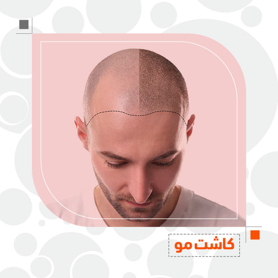 کاشت مو درمان ریزش مو دکتر جمال الدین حسن زاده بهترین متخصص پوست، مو و زیبایی سنندج کردستان ایران