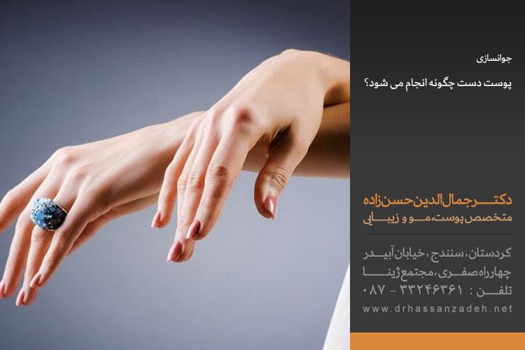 جوانسازی پوست دست