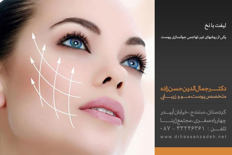 لیفت با نخ روشی نوین در رفع افتادگی پوست | بهترین متخصص پوست سنندج