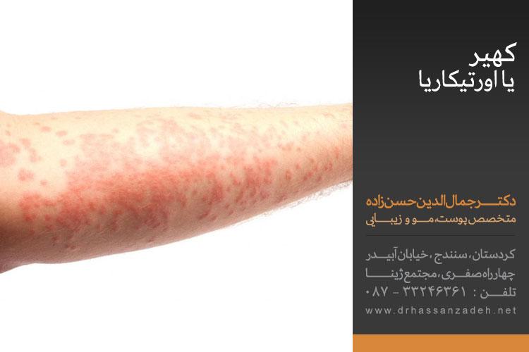 کهیر چیست   علت، علائم و درمان انواع کهیر   بهترین کلینیک پوست سنندج