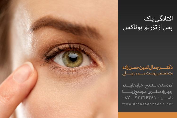 افتادگی پلک پس از تزریق بوتاکس | نوبت دکتر جمال الدین حسن زاده