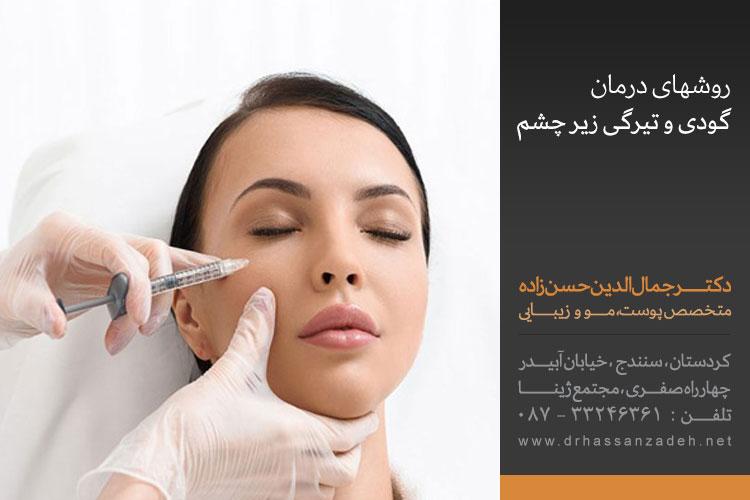 روشهای درمان گودی و تیرگی زیر چشم