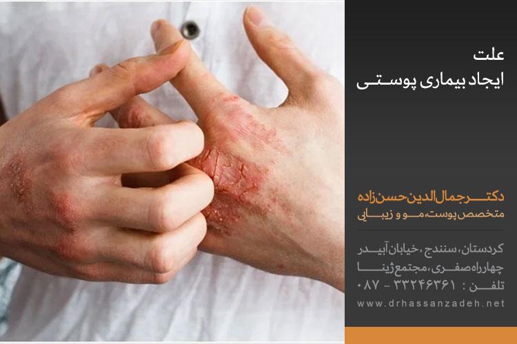 بیماریهای پوستی