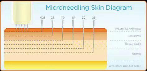 تصویر شماتیک از ورود سوزنهای میکرو در پوست