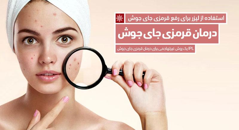 درمان قرمزی جای جوش با لیزر IPL کلینیک پوست، مو و زیبایی دکتر پرستو خسروانی بهتر متخصص پوست و موی شهرکرد