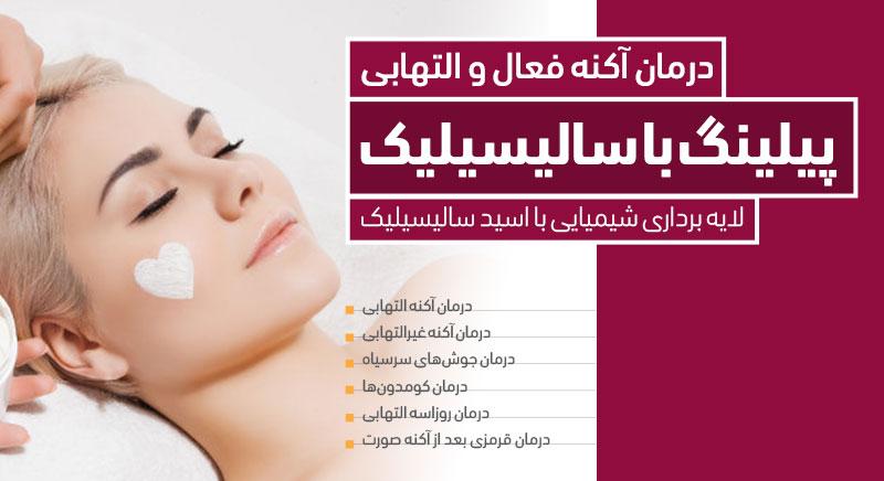 درمان آکنه و جوش با پیلینگ اسید سالیسیلیک کلینیک دکتر پرستو خسروانی بهترین متخصص پوست، مو و زیبایی