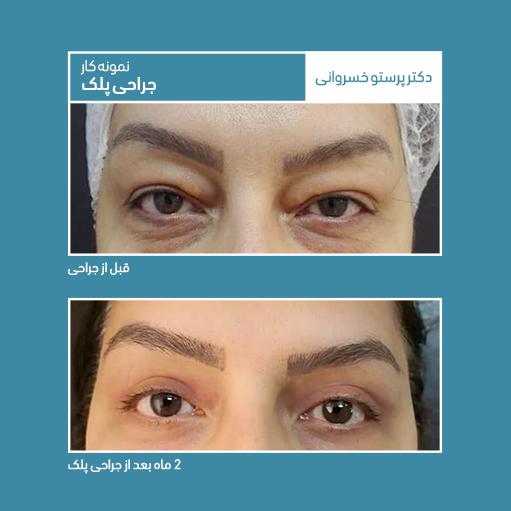 نمونه کار جراحی پلک دکتر پرستو خسروانی بهترین متخصص پوست،، مو و زیبایی شهرکرد