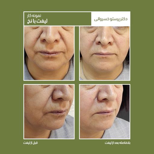 نمونه کار لیفت با نخ دکتر پرستو خسروانی بهترین متخصص پوست، مو و زیبایی شهرکرد