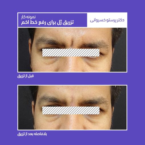 نمونه کار تزریق ژل برای رفع خط اخم دکتر پرستو خسروانی بهترین متخصص پوست، مو و زیبایی شهرکرد