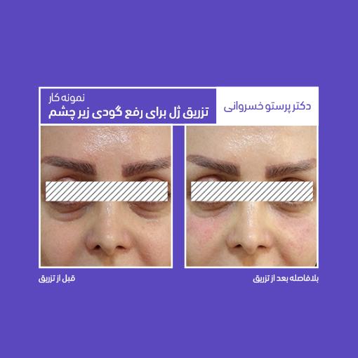 نمونه کار تزریق ژل برای رفع گودی زیر چشم دکتر پرستو خسروانی بهترین متخصص پوست، مو و زیبایی شهرکرد