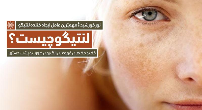 لنتیگو کرایوتراپی کلینیک دکتر پرستو خسروانی، بهترین متخصص پوست، مو و زیبایی شهرکرد، اصفهان  تهران و ایران