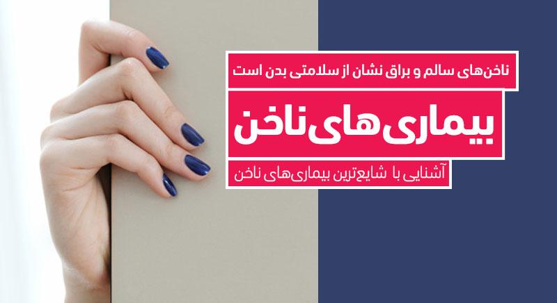 بیماری های ناخن مراقبت از ناخن کلینیک دکتر پرستو خسروانی، بهترین متخصص پوست، مو و زیبایی شهرکرد اصفهان و ایران