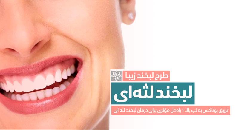 لبخند لثه ای گامی اسمایل gummy smile کلینیک دکتر پرستو خسروانی بهترین متخصص پوست، مو و زیبایی شهرکرد اصفهان تهران ایران
