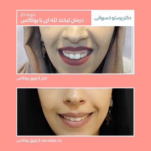 لبخند لثه ای گامی اسمایل gummy smile کلینیک دکتر پرستو خسروانی بهترین متخصص پوست، مو و زیبایی شهرکرد، اصفهان تهران ایران